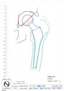 prothèse hanche sur mesure, Dr Belot, chirurgien orthopédiste Rennes