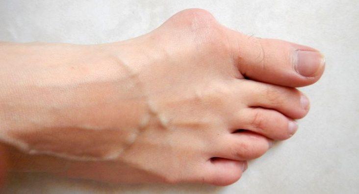chirurgie de l'hallux valgus Rennes-Bretagne - photo Lamiot creative commons