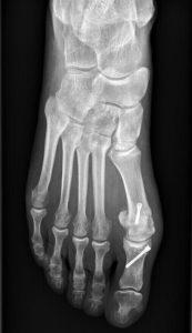Hallux valgus opéré par le Dr Fournier, chirurgien orthopédiste Rennes/Cesson-Sévigné.
